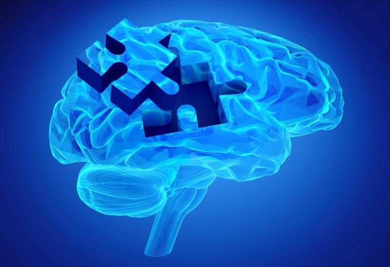 Difference between Neurofeedback and Biofeedback