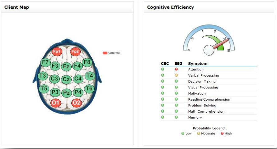 What is NeuroZone (1)-2B